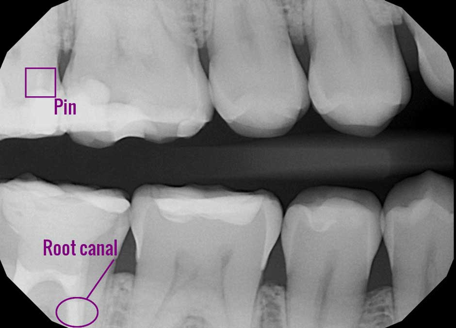 bitewing dental x-ray marked